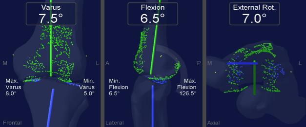 imagen de la rodilla antes del uso del navegador