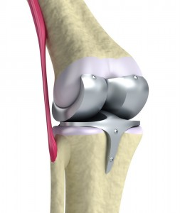 cirugia-protesis-de-rodilla-guadalajara-mexico